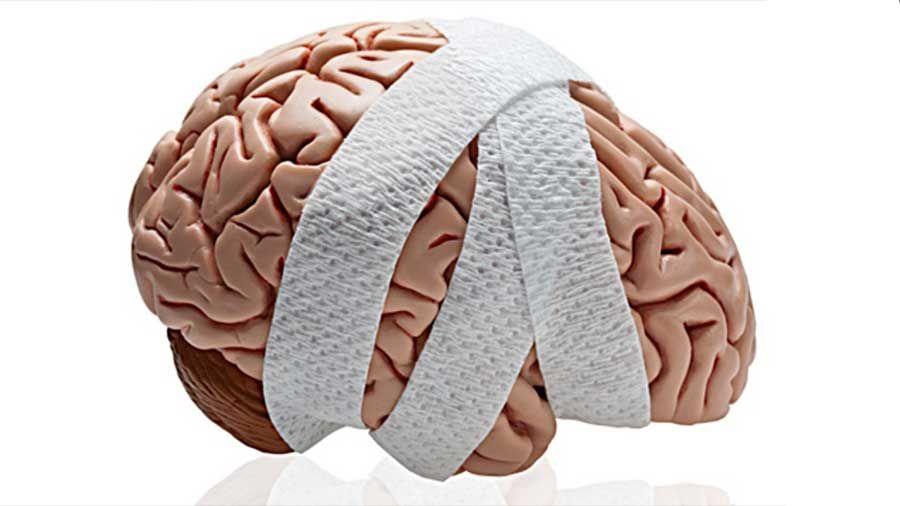 Los Mejores Abogados en Español de Lesiones Cerebrales Para Mayor Compensación en San Diego California
